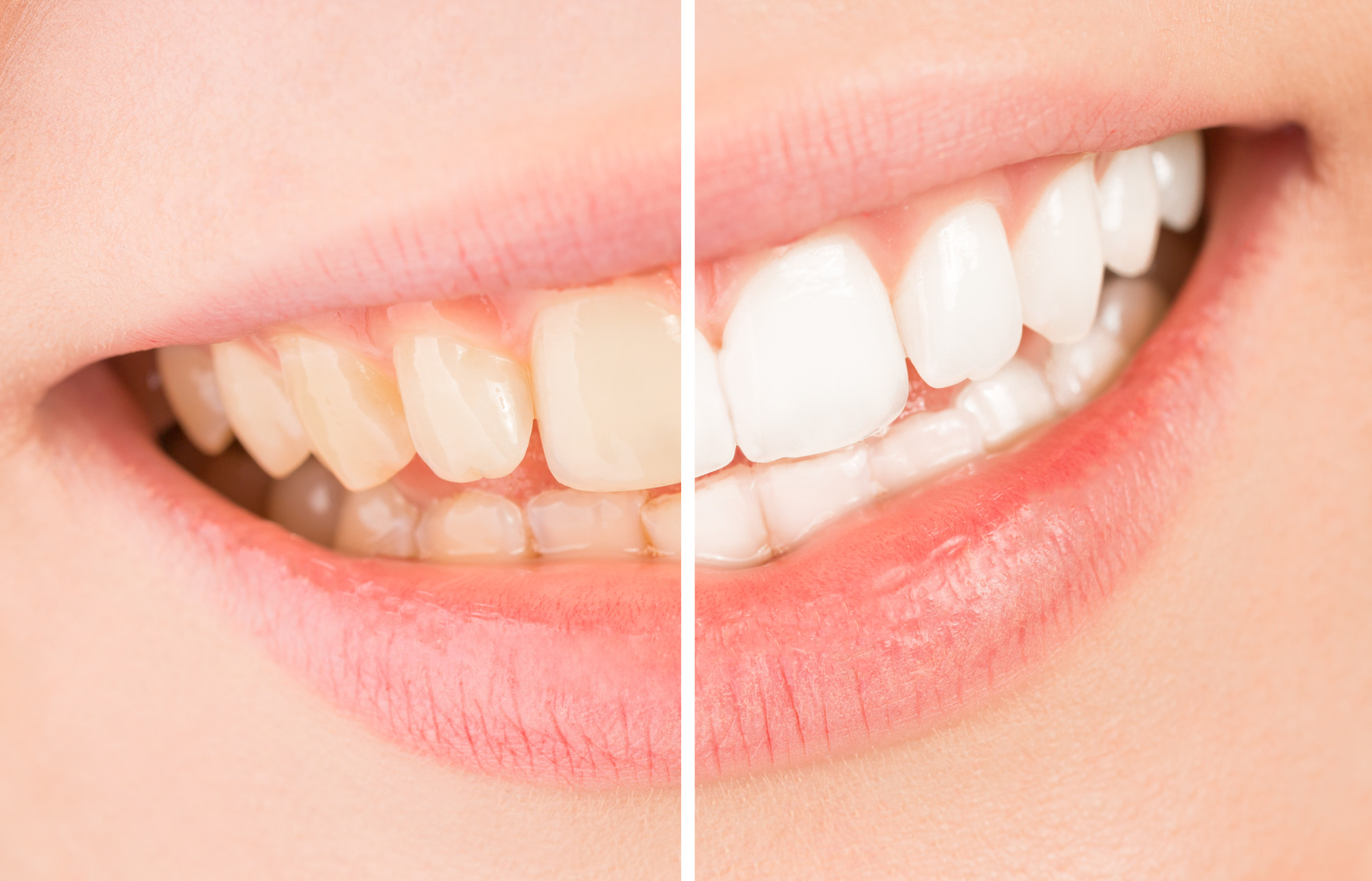 10 Teeth Whitening Tips for a Brighter Smile